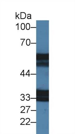 Western blot - Anti-IL-18R1 antibody (ab231565)