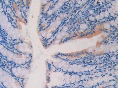 Immunohistochemistry (Formalin/PFA-fixed paraffin-embedded sections) - Anti-IL-18R1 antibody (ab231565)