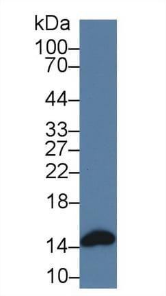 Western blot - Anti-H-FABP antibody (ab231568)