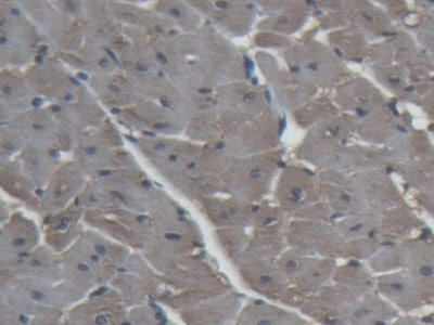 Immunohistochemistry (Formalin/PFA-fixed paraffin-embedded sections) - Anti-H-FABP antibody (ab231568)