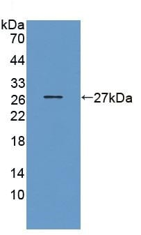 Western blot - Anti-GST3 / GST pi antibody (ab231569)