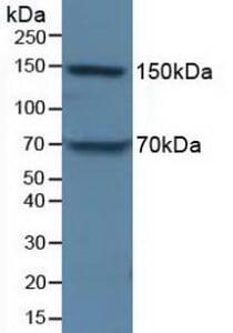 Western blot - Anti-Apolipoprotein B antibody (ab231574)