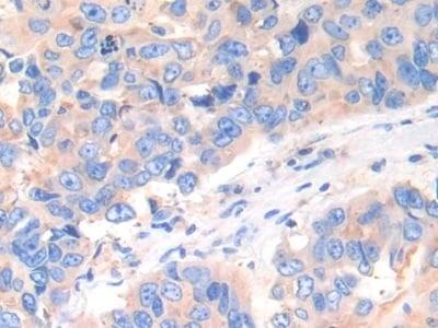 Immunohistochemistry (Formalin/PFA-fixed paraffin-embedded sections) - Anti-Cathepsin K antibody (ab231590)