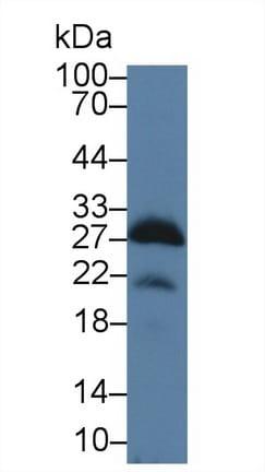 Western blot - Anti-Myelin oligodendrocyte glycoprotein antibody (ab231598)