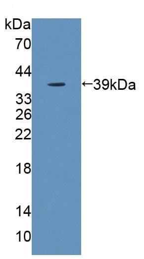 Western blot - Anti-Blood Group Kell Antigen antibody (ab231602)
