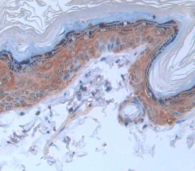 Immunohistochemistry (Formalin/PFA-fixed paraffin-embedded sections) - Anti-Cytokeratin 2e antibody (ab231608)