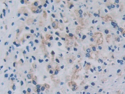 Immunohistochemistry (Formalin/PFA-fixed paraffin-embedded sections) - Anti-RARS antibody (ab231610)