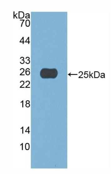 Western blot - Anti-A1CF/ACF antibody (ab231614)