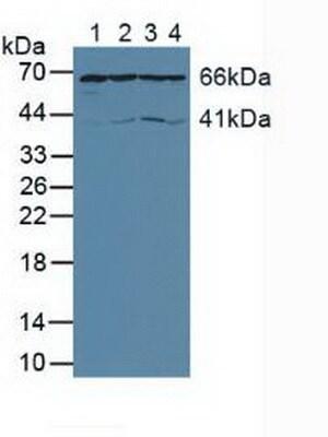 Western blot - Anti-AIF antibody (ab231615)