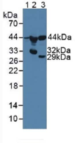 Western blot - Anti-MMP22 antibody (ab231617)