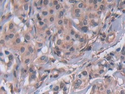 Immunohistochemistry (Formalin/PFA-fixed paraffin-embedded sections) - Anti-MMP22 antibody (ab231617)