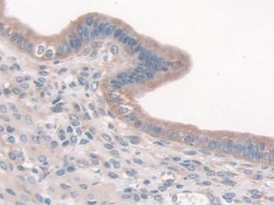 Immunohistochemistry (Formalin/PFA-fixed paraffin-embedded sections) - Anti-Cortactin antibody (ab231620)
