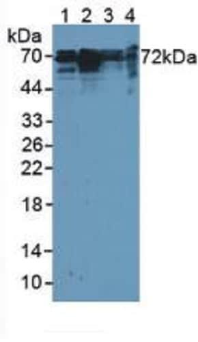 Western blot - Anti-Cortactin antibody (ab231620)
