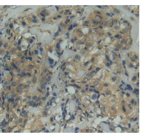 Immunohistochemistry (Formalin/PFA-fixed paraffin-embedded sections) - Anti-CD11d antibody (ab231622)