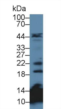 Western blot - Anti-MAGP2 antibody (ab231626)