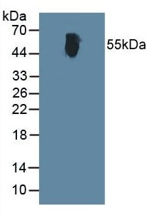 Western blot - Anti-Alanine Transaminase antibody (ab231629)