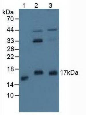 Western blot - Anti-Calcineurin B/CNB antibody (ab231630)