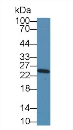 Western blot - Anti-NME5 antibody (ab231631)