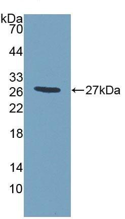 Western blot - Anti-MPP2/DLG2 antibody (ab231634)