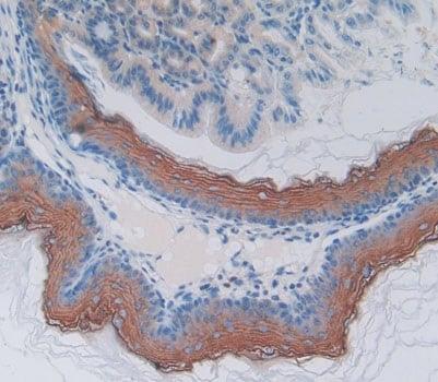 Immunohistochemistry (Formalin/PFA-fixed paraffin-embedded sections) - Anti-MPP2/DLG2 antibody (ab231634)