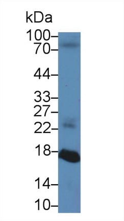 Western blot - Anti-RBP2 antibody (ab231636)