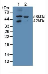 Western blot - Anti-GALNS/Chondroitinase antibody (ab231647)