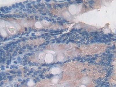 Immunohistochemistry (Formalin/PFA-fixed paraffin-embedded sections) - Anti-C2 antibody (ab231651)