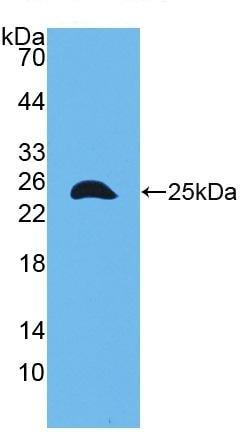 Western blot - Anti-Talin 1 antibody (ab231653)