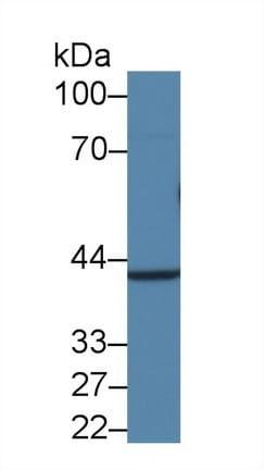 Western blot - Anti-Apolipoprotein E antibody (ab231655)