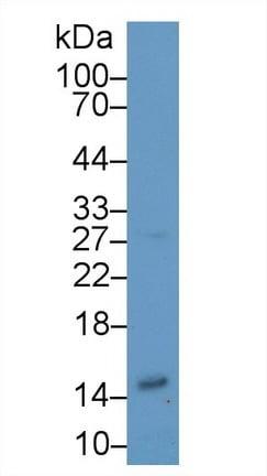 Western blot - Anti-H-FABP antibody (ab231661)