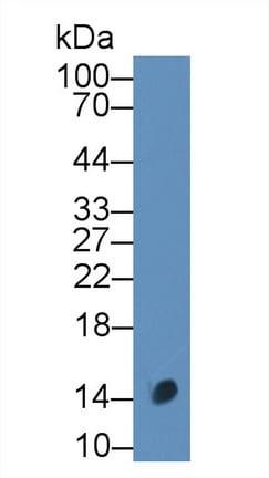 Western blot - Anti-CALCB antibody (ab231662)