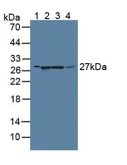 Western blot - Anti-GAMT antibody (ab231664)