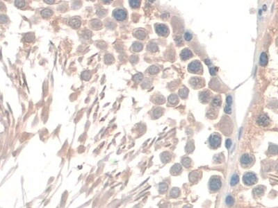 Immunohistochemistry (Formalin/PFA-fixed paraffin-embedded sections) - Anti-GAMT antibody (ab231664)