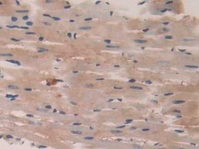 Immunohistochemistry (Formalin/PFA-fixed paraffin-embedded sections) - Anti-VE-PTP antibody (ab231670)