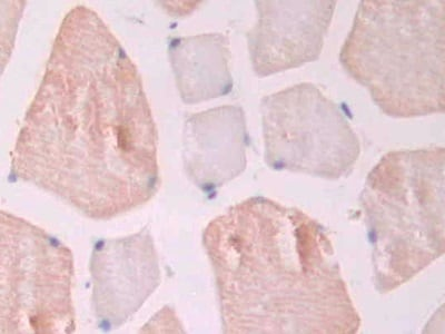 Immunohistochemistry (Formalin/PFA-fixed paraffin-embedded sections) - Anti-CD105 antibody (ab231673)