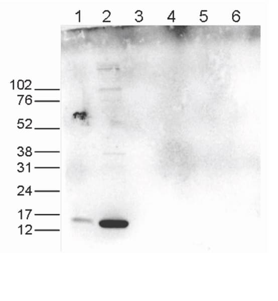 Western blot - Anti-Histone H3 (asymmetric di methyl R17, acetyl K18) antibody (ab231674)