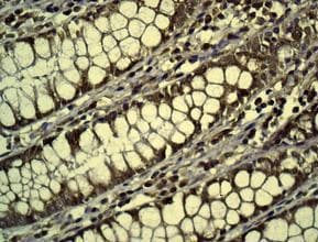Immunohistochemistry (Formalin/PFA-fixed paraffin-embedded sections) - Anti-DPD antibody [EPR8811] - BSA and Azide free (ab231701)