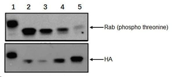 Western blot - Anti-RAB8A (phospho T72) antibody [MJF-R20] - BSA and Azide free (ab231706)