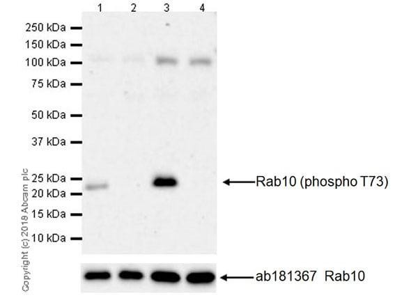 Western blot - Anti-RAB10 (phospho T73) antibody [MJF-R21] - BSA and Azide free (ab231707)