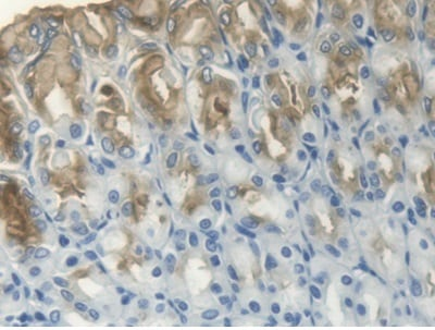 Immunohistochemistry (Formalin/PFA-fixed paraffin-embedded sections) - Anti-Estrogen Inducible Protein pS2 antibody (ab231713)