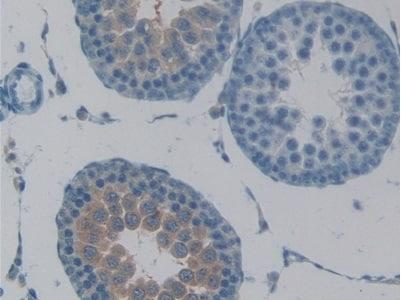 Immunohistochemistry (Formalin/PFA-fixed paraffin-embedded sections) - Anti-NK-2R antibody (ab231716)