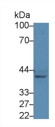 Western blot - Anti-NK-2R antibody (ab231716)