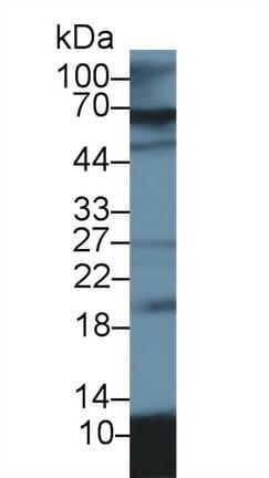 Western blot - Anti-S100A12/CGRP antibody (ab231722)