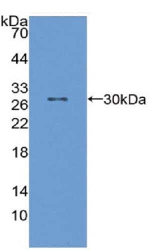Western blot - Anti-SAP1 antibody (ab231727)