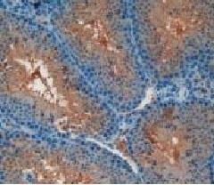 Immunohistochemistry (Formalin/PFA-fixed paraffin-embedded sections) - Anti-CD55 antibody (ab231734)