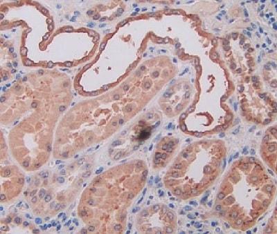 Immunohistochemistry (Formalin/PFA-fixed paraffin-embedded sections) - Anti-Osteopontin antibody (ab231736)