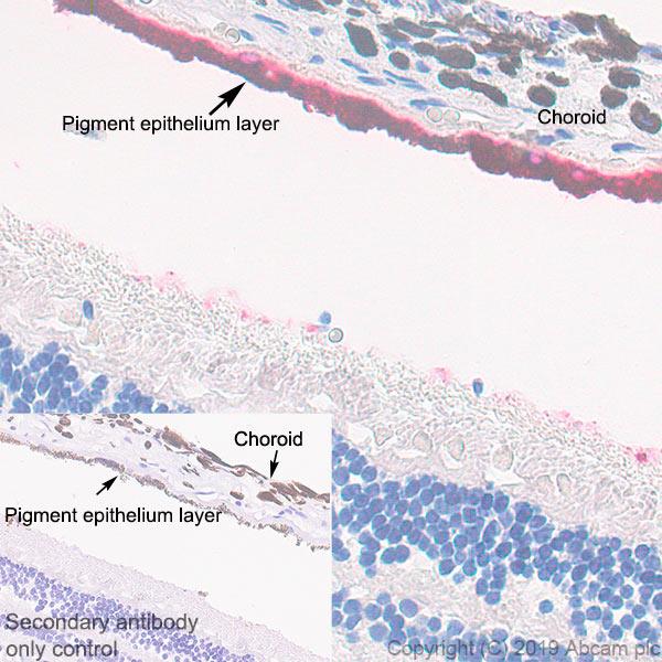Immunohistochemistry (Formalin/PFA-fixed paraffin-embedded sections) - Anti-RPE65 antibody [EPR22579-44] (ab231782)