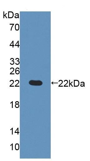 Western blot - Anti-GCDH/GCD antibody (ab231783)