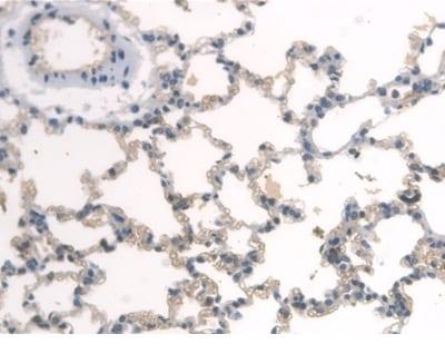 Immunohistochemistry (Formalin/PFA-fixed paraffin-embedded sections) - Anti-BMAL1 antibody (ab231793)