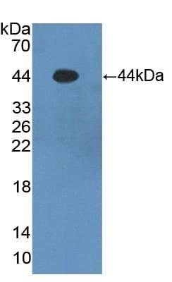 Western blot - Anti-Psoriasin antibody (ab231799)